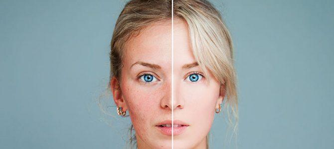 Czy kolagen pomoże na trądzik różowaty?